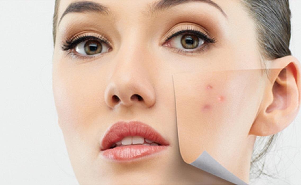 tratament-acnee